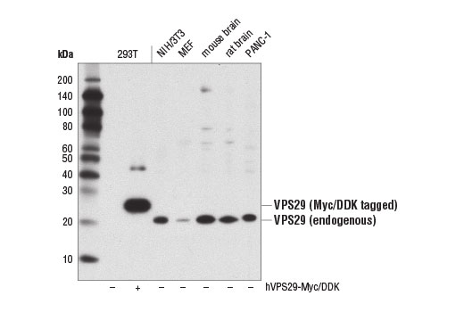 Western blot analysis of extracts from 293T cells, untransfected (-) or transfected with a construct expressing Myc/DDK-tagged full-length human VPS29 (hVPS29-Myc/DDK; +), and of extracts from various cell lines and tissues, using VPS29 (D2H7G) Rabbit mAb.