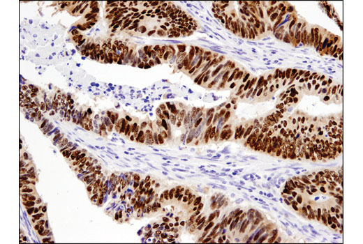 Immunohistochemical analysis of paraffin-embedded human colon carcinoma using Sox9 (D8G8H) Rabbit mAb.