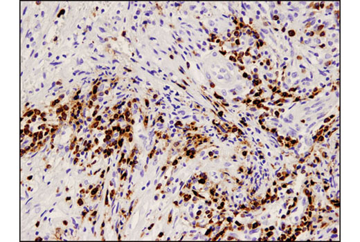 Immunohistochemical analysis of paraffin-embedded human breast carcinoma using CD79A (D1X5C) XP<sup>®</sup> Rabbit mAb.