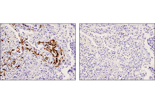 Immunohistochemical analysis of paraffin-embedded human lung carcinoma using CD79A (D1X5C) XP<sup>®</sup> Rabbit mAb in the presence of control peptide (left) or antigen-specific peptide (right).