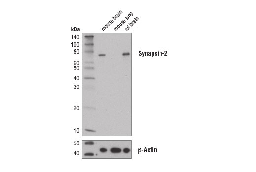 Western blot analysis of extracts from mouse brain, mouse lung, and rat brain tissues using Synapsin-2 (D6S9C) Rabbit mAb (upper) and β-Actin (D6A8) Rabbit mAb #8457 (lower).