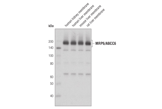 Western blot analysis of membrane extracts from various tissues using MRP6/ABCC6 (D9D1F) Rabbit mAb.
