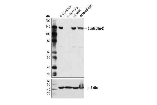 Western blot analysis of extracts from various tissue using Contactin-2 (D4M7G) Rabbit mAb (upper) and β-Actin (D6A8) Rabbit mAb #8457 (lower).
