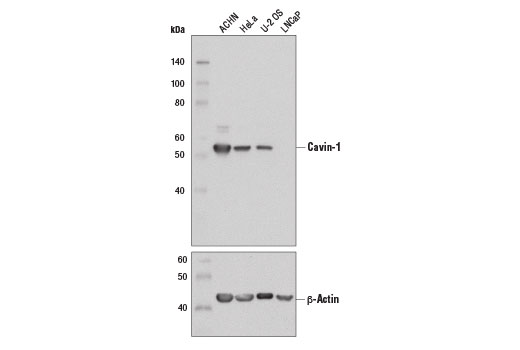 Western blot analysis of extracts from various cell lines using Cavin-1 (D8C1D) Rabbit mAb (upper) and β-Actin (D6A8) Rabbit mAb #8457 (lower).
