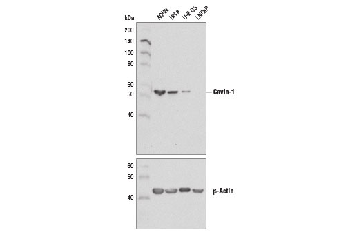 Western blot analysis of extracts from various cell lines using Cavin-1 (D1P6W) Rabbit mAb (upper) and β-Actin (D6A8) Rabbit mAb #8457 (lower).