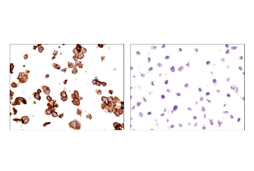 Immunohistochemical analysis of paraffin-embedded ACHN (left) and LNCaP (right) cell pellets using Cavin-1 (D1P6W) Rabbit mAb.