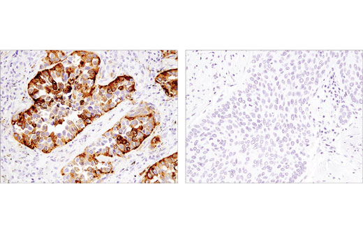 Monoclonal Antibody - Napsin A (D5P6G) XP® Rabbit mAb, UniProt ID O96009, Entrez ID 9476 #62434 - Ubiquitin and Ubiquitin-Like Proteins