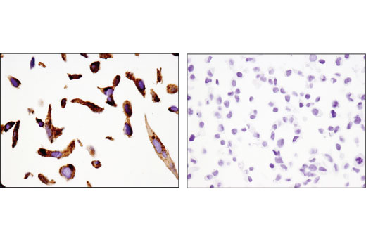 Immunohistochemical analysis of paraffin-embedded H3255 (left) or 293 (right) cell pellets using Napsin A (D5P6G) XP<sup>®</sup> Rabbit mAb.