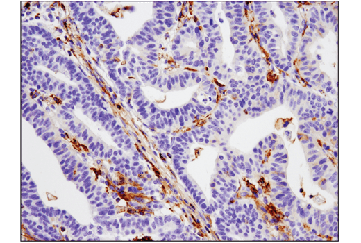 Immunohistochemical analysis of paraffin-embedded human colon adenocarcinoma using VISTA (D1L2G™) XP<sup>®</sup> Rabbit mAb performed on the Leica® BOND™ Rx.