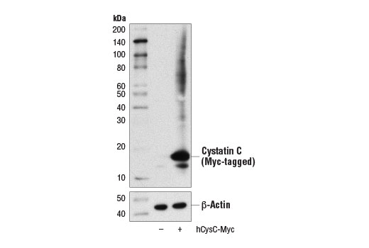 Western blot analysis of extracts from 293T cells, mock transfected (-) or transfected with a construct expressing Myc-tagged full-length human cystatin C protein (hCysC-Myc; +), using Cystatin (D6U3E) Rabbit mAb (upper) and β-Actin (D6A8) Rabbit mAb #8457 (lower).