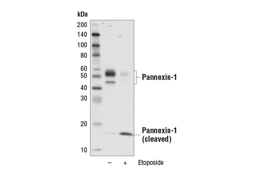 Western blot analysis of extracts from Jurkat cells, untreated (-) or treated with Etoposide #2200 (25 μM, overnight; +), using Pannexin-1 (D9M1C) Rabbit mAb.