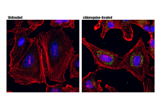 Confocal immunofluorescent analysis of HeLa cells, untreated (left) or treated with chloroquine (50 μM, 24 hr; right), using GABARAPL1 (D5R9Y) XP<sup>®</sup> Rabbit mAb (green) and β-Actin (8H10D10) Mouse mAb #3700 (red). Blue pseudocolor = DRAQ5<sup>®</sup> #4084 (fluorescent DNA dye).
