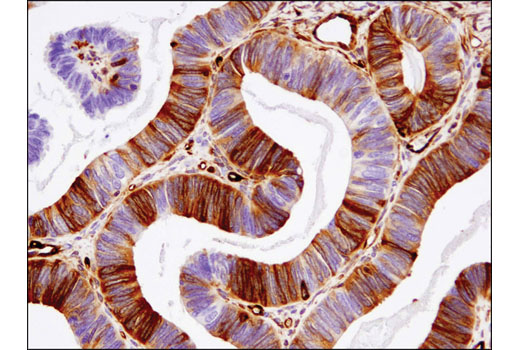 Immunohistochemical analysis of paraffin-embedded ovarian serous carcinoma using Fascin (55K-2) Mouse mAb (IHC Formulated).