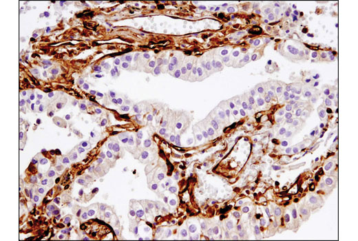 Immunohistochemical analysis of paraffin-embedded non-small cell lung carcinoma using Fascin (55K-2) Mouse mAb (IHC Formulated).