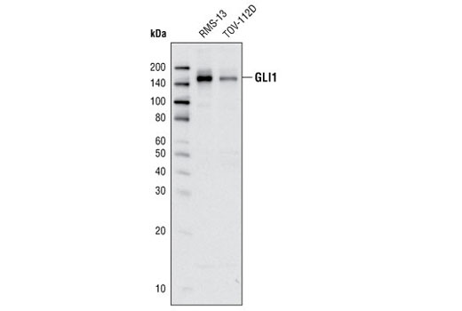 Monoclonal Antibody Immunoprecipitation Notochord Regression - count 2