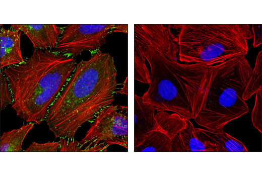 Monoclonal Antibody Immunofluorescence Immunocytochemistry Muscle Cell Differentiation