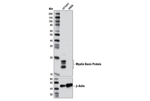 Western blot analysis of extracts from rat brain and KNRK cells using Myelin Basic Protein (2H9) Mouse mAb (upper) or β-Actin (D6A8) Rabbit mAb #8457 (lower).