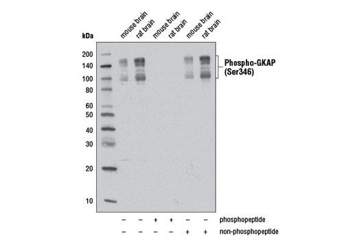 Polyclonal Antibody - Phospho-GKAP (Ser346) Antibody - Western Blotting, UniProt ID O14490, Entrez ID 9229 #13638, Neuroscience