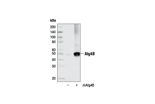 Western blot analysis of extracts from 293T cells, mock transfected (-) or transfected with a construct expressing full-length mouse Atg4B (mAtg4B; +), using Atg4B (D1G2R) Rabbit mAb.