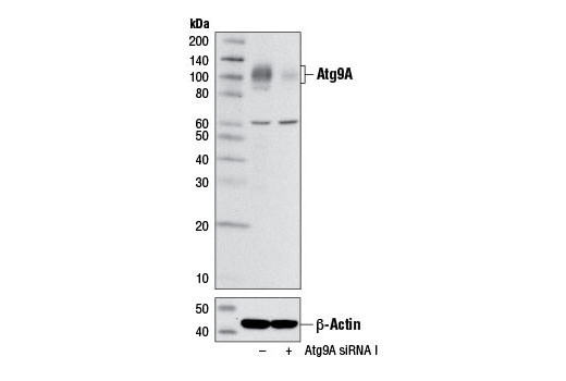 Western blot analysis of extracts from RD cells, transfected with 100 nM SignalSilence<sup>®</sup> Control siRNA (Unconjugated) #6568 (-) or SignalSilence<sup>®</sup> Atg9A siRNA I #7051 (+), using Atg9A (D4O9D) Rabbit mAb (upper) or β-Actin (D6A8) Rabbit mAb #8457 (lower). The Atg9A (D4O9D) Rabbit mAb confirms silencing of Atg9A expression while the β-Actin (D6A8) Rabbit mAb is used as a loading control.