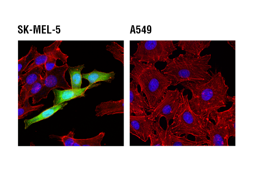 Confocal immunofluorescent analysis of rat oligodendrocyte progenitor (left), SK-MEL-5 (middle), or A549 (right) cells using FABP7 (D8N3N) Rabbit mAb (green). Actin filaments were labeled with DyLight™ 554 Phalloidin #13054 (red). Blue pseudocolor = DRAQ5<sup>®</sup> #4084 (fluorescent DNA dye).