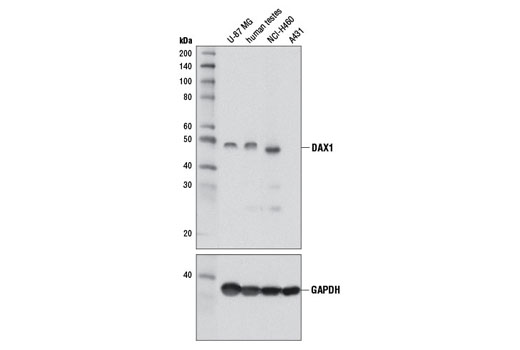 Western blot analysis of extracts from U-87 MG, NCI-H460, A431 cells, and human testis using DAX1 (D2F1) Rabbit mAb. A431 extract is negative as expected.