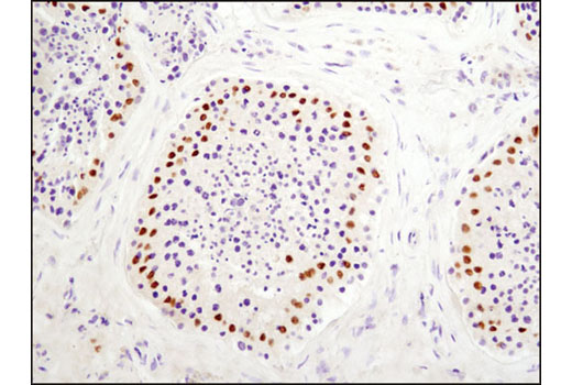 Immunohistochemical analysis of paraffin-embedded human testis using DAX1 (D2F1) Rabbit mAb.