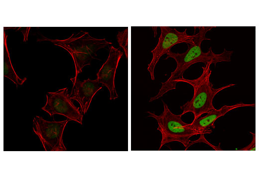 Confocal immunofluorescent analysis of HeLa cells, untreated (left) or treated with Trichostatin A (TSA) #9950 (1 μM, overnight; right) using Acetyl-Histone H4 (Lys16) (E2B8W) Rabbit mAb (green). Actin filaments were labeled with DyLight™ 554 Phalloidin #13054 (red).