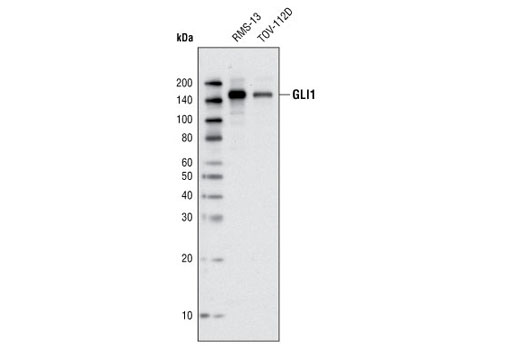 Western blot analysis of extracts from RMS-13 and TOV-112D cells using GLI1 (V812) Antibody.