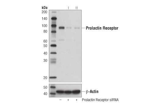 Western blot analysis of extracts from MCF7 cells, transfected with SignalSilence<sup>®</sup> Control siRNA (unconjugated) #6568 (-), SignalSilence<sup>® </sup>Prolactin Receptor siRNA I #13822 (+) or SignalSilence<sup>®</sup> Prolactin Receptor siRNA II #13836 (+), using Prolactin Receptor (D4A9) Rabbit mAb (upper), or β-actin (D8A6) Rabbit mAb #8457 (lower). The Prolactin Receptor (D4A9) Rabbit mAb confirms silencing of Prolactin Receptor expression, while the β-actin (D8A6) Rabbit mAb is used as a loading control.