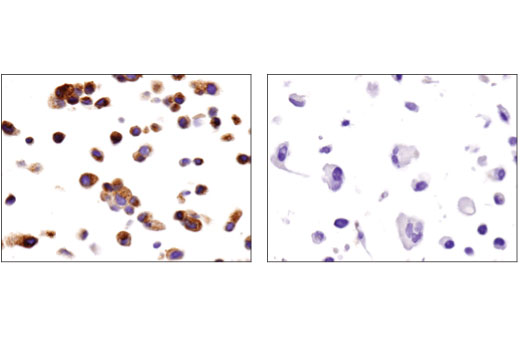Immunohistochemical analysis of paraffin-embedded T-47D (left) and MDA-MB-231 (right) cell pellets using Prolactin Receptor (D4A9) Rabbit mAb.