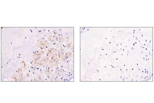 Immunohistochemical analysis of paraffin-embedded human placenta using Prolactin Receptor (D4A9) Rabbit mAb in the presence of control peptide (left) or antigen-specific peptide (right). Note the staining observed in placental decidual cells.