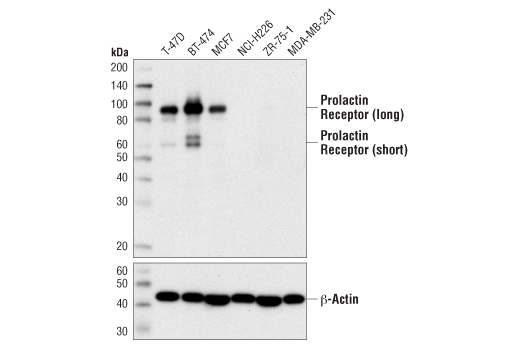 Western blot analysis of extracts from various cell lines using Prolactin Receptor (D4A9) Rabbit mAb (upper) and β-Actin (D6A8) Rabbit mAb #8457 (lower).