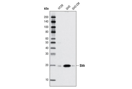 Western blot analysis of extracts from HT29 and GH3 cells, and GH3 cell conditioned medium (CM), using Shh (C9C5) Rabbit mAb.