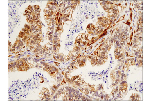 Immunohistochemical analysis of paraffin-embedded human ovarian carcinoma using β-Arrestin 1 (D7Z3W) XP<sup>®</sup> Rabbit mAb.