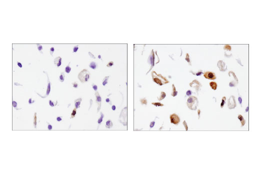 Immunohistochemical analysis of paraffin-embedded A549 cell pellets, untreated (left) or dexamethasone-treated (100nM, 16 hr; right), using β-Arrestin 1 (D7Z3W) XP<sup>®</sup> Rabbit mAb.