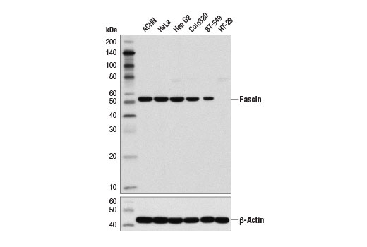 Western blot analysis of extracts from various cell lines using Fascin (55k-2) Mouse mAb (upper) and β-Actin (D6A8) Rabbit mAb #8457 (lower).