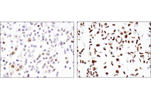 Immunohistochemical analysis of paraffin-embedded T-47D (Fra2 low expression, left) and U-2 OS (Fra2 high expression, right) cell pellets using Fra2 (D2F1E) Rabbit mAb.