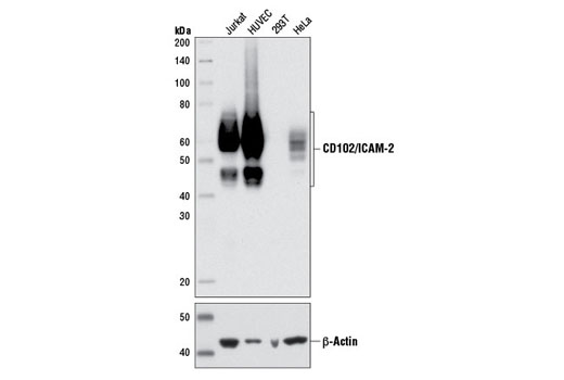 Western blot analysis of extracts from various cell lines using CD102/ICAM-2 (D7P2Q) Rabbit mAb (upper) or β-Actin (13E5) Rabbit mAb #4970 (lower).