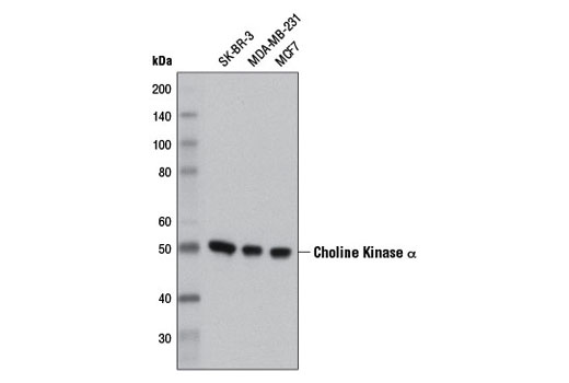 Western blot analysis of extracts from SK-BR-3, MDA-MB-231 and MCF7 cells using Choline Kinase α (D5X9W) Rabbit mAb.