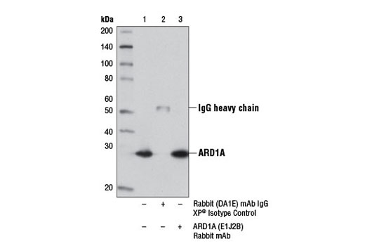 Immunoprecipitation of ARD1A from 293 cell extracts using Rabbit (DA1E) mAb IgG XP<sup>®</sup> Isotype Control #3900 (lane 2) or ARD1A (E1J2B) Rabbit mAb (lane 3). Lane 1 is 10% input. Western blot analysis was performed using ARD1A (E1J2B) Rabbit mAb.