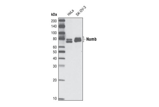 Monoclonal Antibody - Numb (C44B4) Rabbit mAb, UniProt ID P49757, Entrez ID 8650 #2761 - Developmental Biology