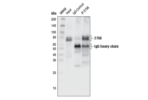 Immunoprecipitation/western blot analysis of lysates from HeLa cells. Lane 1 contains lysate input (10%), lane 2 was immunoprecipitated with non-specific rabbit IgG (#3900), lane 3 was immunoprecipitated with Numb (C29G11) Rabbit mAb #2756. Western blot analysis was performed using Numb (C29G11) Rabbit mAb #2756.