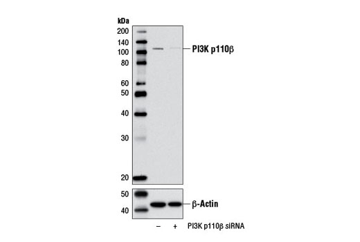 Western blot analysis of extracts from MCF7 cells, transfected with 100 nM SignalSilence<sup>®</sup> Control siRNA (Unconjugated) #6568 (-) or SignalSilence<sup>®</sup> PI3 Kinase p110β siRNA I (+), using PI3 Kinase p110β (C73F8) Rabbit mAb #3011 and β-Actin (D6A8) Rabbit mAb #8457. The PI3 Kinase p110β (C73F8) Rabbit mAb antibody confirms silencing of PI3 Kinase p110β expression while the β-Actin (D6A8) Rabbit mAb is used as a loading control.
