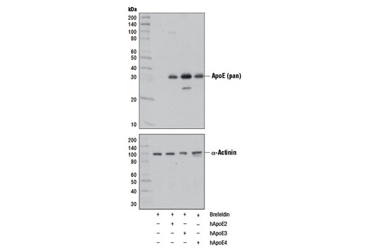 Western blot analysis of cell extracts from 293T cells, treated with Brefeldin A #9972 (10 ng/ml, 90 min; +) and mock transfected (-) or transfected with a construct expressing full-length human ApoE2 (hApoE2; +), ApoE3 (hApoE3; +), or ApoE4 (hApoE4; +), using ApoE (pan) (D7I9N) Rabbit mAb (upper) and α-Actinin (D6F6) XP<sup>®</sup> Rabbit mAb #6487 (lower).