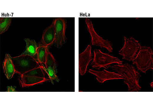 Confocal immunofluorescent analysis of Huh-7 (left) or HeLa (right) cells using FABP1 (D2A3X) XP<sup>®</sup> Rabbit mAb (green). Actin filaments were labeled with DyLight™ 554 Phalloidin #13054 (red).