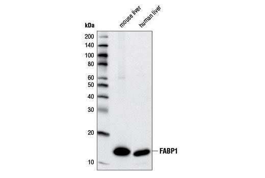 Western blot analysis of extracts from mouse liver and human liver using FABP1 (D2A3X) XP<sup>®</sup> Rabbit mAb.