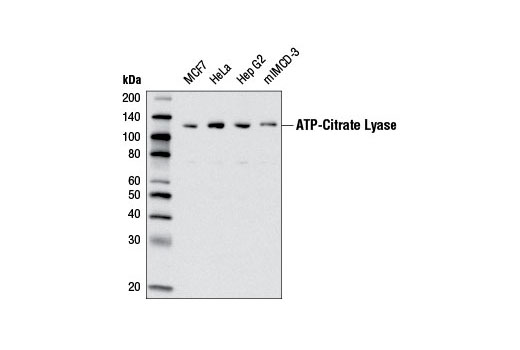 Monoclonal Antibody - ATP-Citrate Lyase (D1X6P) Rabbit mAb - Western Blotting, UniProt ID P53396, Entrez ID 47 #13390, Glucose / Energy Metabolism