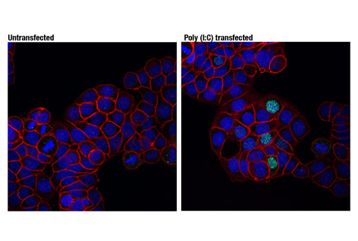 Confocal immunofluorescent analysis of HT-29 cells, untransfected (left) or transfected with Poly (I:C) (2.5 μg/ml, 6 hr; right), using Phospho-IRF-3 (Ser396) (D6O1M) Rabbit mAb (green) and EpCAM (VU1D9) Mouse mAb (Alexa Fluor<sup>®</sup> 555 Conjugate) #5488 (red). Blue pseudocolor = DRAQ5<sup>®</sup> #4084 (fluorescent DNA dye).