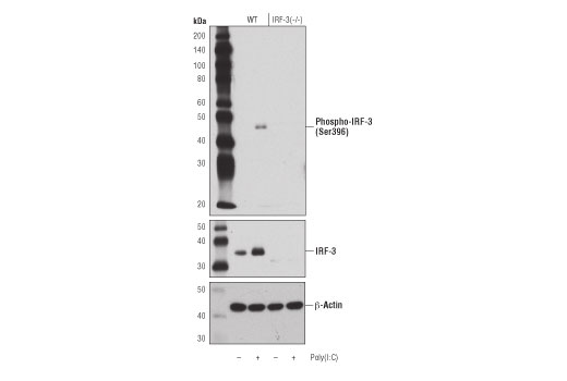 Western blot analysis of adipocytes from wild type (WT) mice, untransfected (-) or transfected with Poly (I:C) (2.5 μg/ml, 6 hr; +), and adipocytes from IRF-3 (-/-) mice, untransfected (-) or transfected with Poly (I:C) (2.5 μg/ml, 6 hr; +), using Phospho-IRF-3 (Ser396) (D6O1M) Rabbit mAb (upper), IRF-3 (D83B9) Rabbit mAb #4302 (middle), and β-Actin (D6A8) Rabbit mAb #8457 (lower).